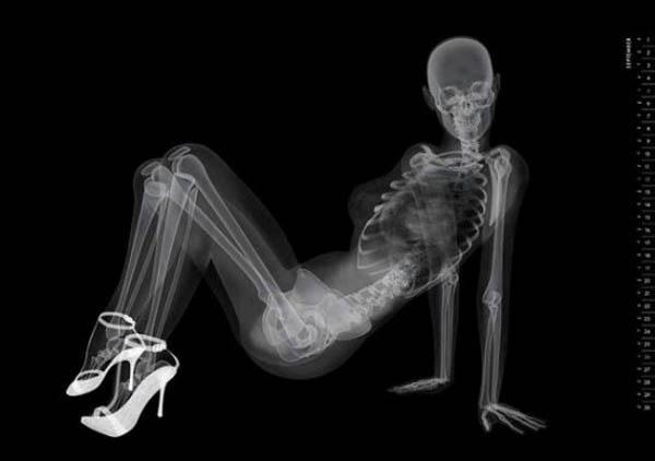X-Ray-Calendar